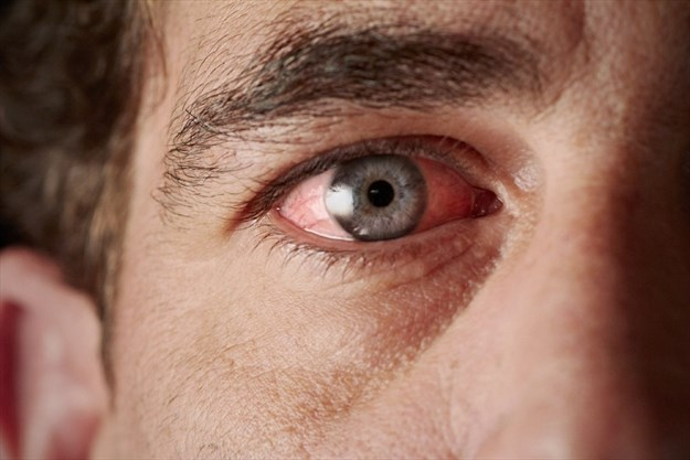So you got Pink Eye. Try these quick home remedies