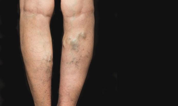 self help for varicose veins