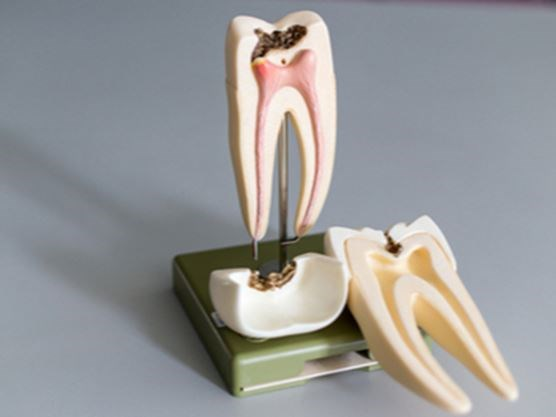 Root canal vs  tooth extraction: When to save and when to pull