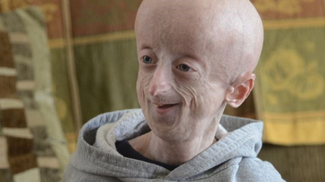 progeria essay Progeria free essays, term papers and book reports thousands of papers to select from all free.