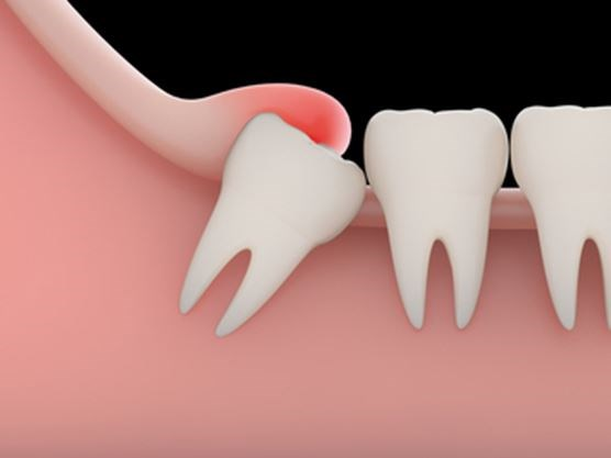wisdom teeth myths and facts